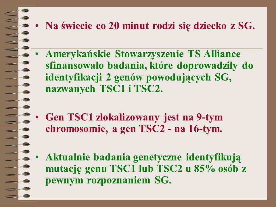 Na świecie co 20 minut rodzi się dziecko z SG. Amerykańskie Stowarzyszenie TS Alliance sfinansowało badania, które doprowadziły do identyfikacji 2 gen