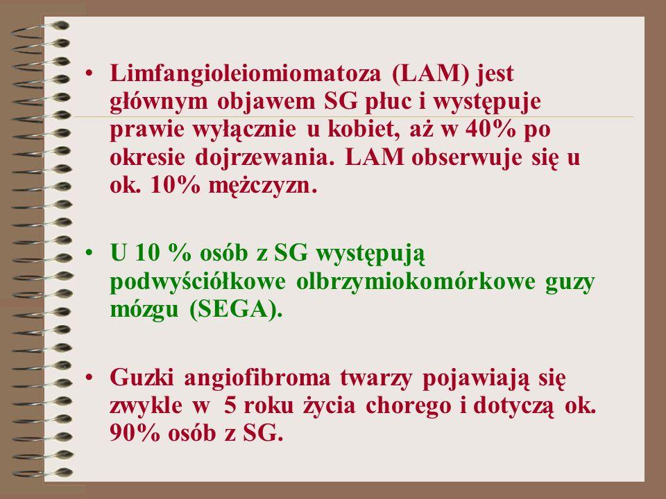 Limfangioleiomiomatoza (LAM) jest głównym objawem SG płuc i występuje prawie wyłącznie u kobiet, aż w 40% po okresie dojrzewania. LAM obserwuje się u