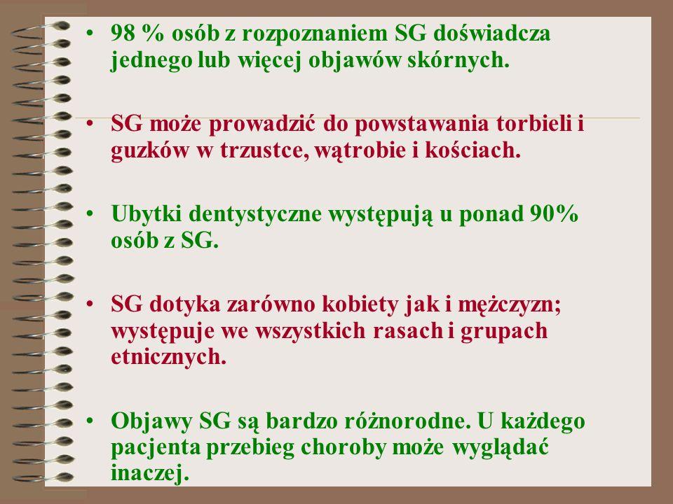 NIEKTÓRE BADANIA LOKALNE: Terapia Everolimusem guzów typu SEGA u pacjentów z TSC.