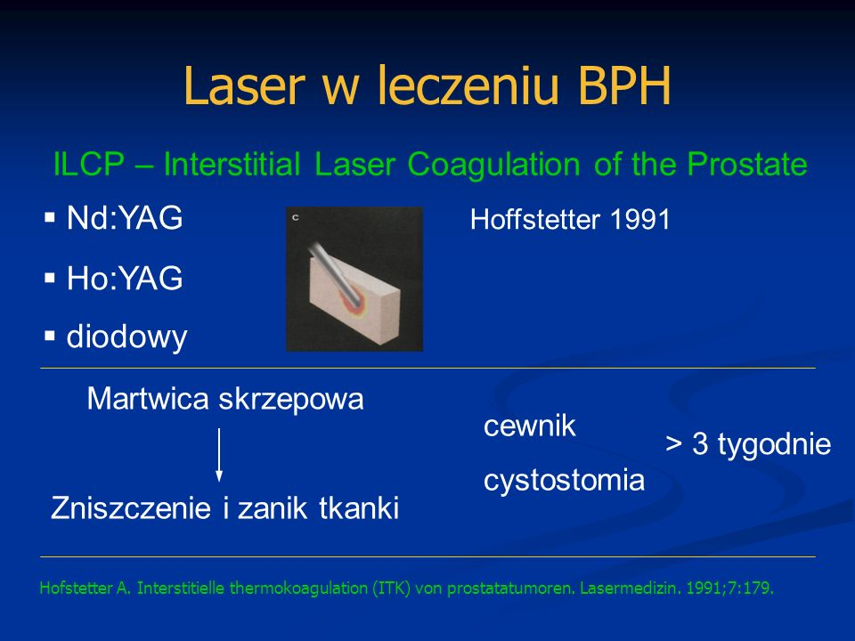 Laser w leczeniu BPH ILCP Martenson, De La Rosette objawy podrażnieniowe (2 -4 tyg)>50% krwiomocz przejściowy>50% zakażenie dróg moczowych24% nawrót (3 lata >40%) ILCP + TURPCorvin 2002 Martenson AC, De La Rosette JJ.