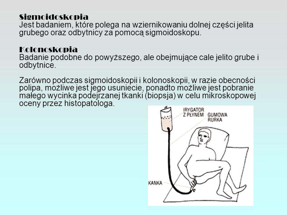 Sigmoidoskopia Jest badaniem, które polega na wziernikowaniu dolnej części jelita grubego oraz odbytnicy za pomocą sigmoidoskopu. Kolonoskopia Badanie