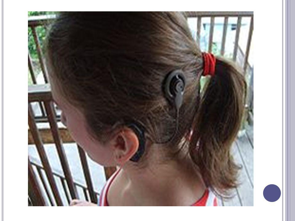 DOSTĘPNOŚĆ IMPLANTU ŚLIMAKOWEGO W Polsce stosowane są implanty firm: Advanced Bionics Ear, Cochlear, Freedom oraz Medel.