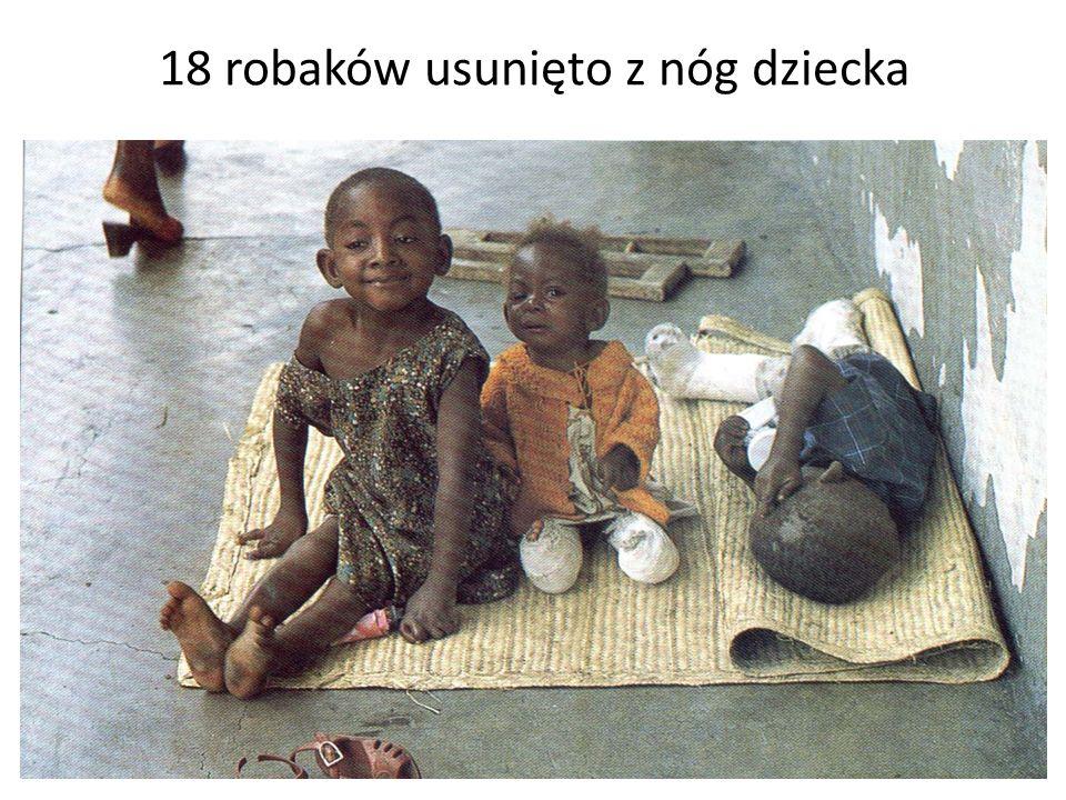 18 robaków usunięto z nóg dziecka