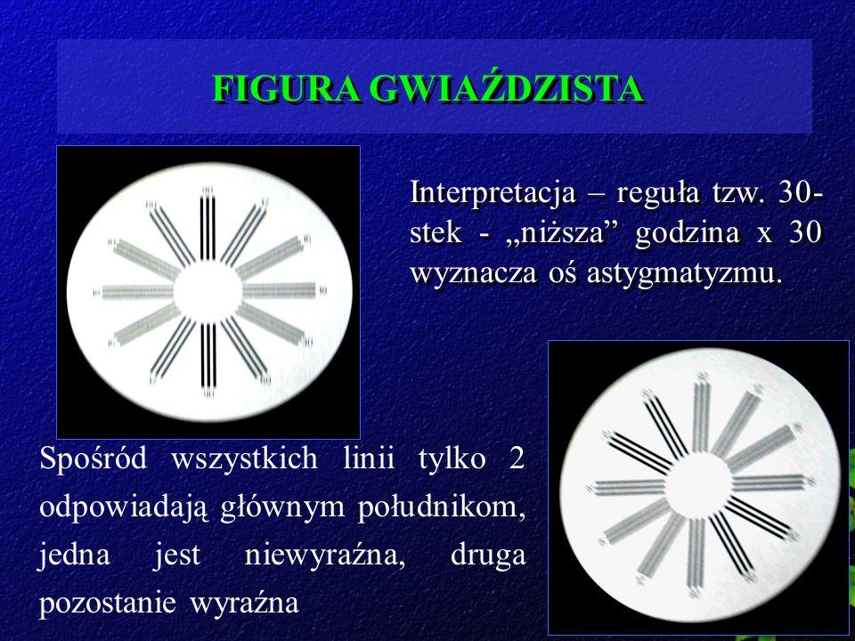 FIGURA GWIAŹDZISTA Interpretacja – reguła tzw. 30- stek - niższa godzina x 30 wyznacza oś astygmatyzmu. Spośród wszystkich linii tylko 2 odpowiadają g