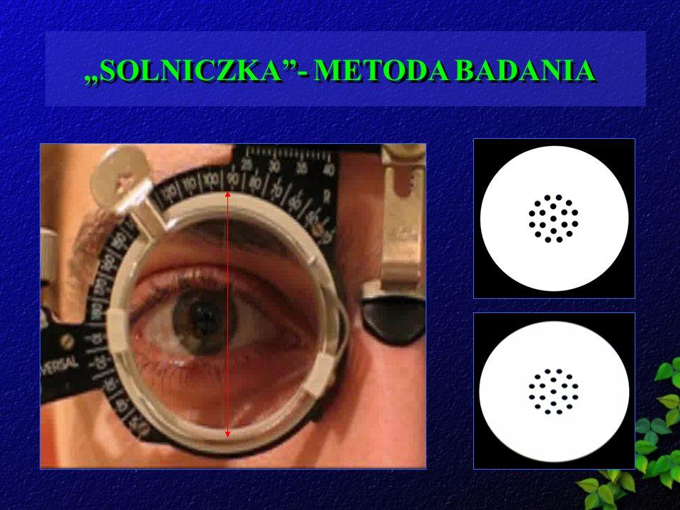 SOLNICZKA- METODA BADANIA