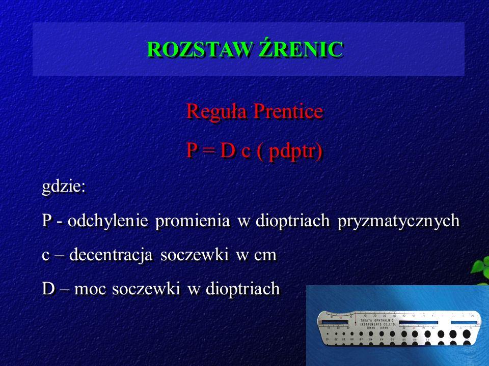 ROZSTAW ŹRENIC Reguła Prentice P = D c ( pdptr) gdzie: P - odchylenie promienia w dioptriach pryzmatycznych c – decentracja soczewki w cm D – moc socz