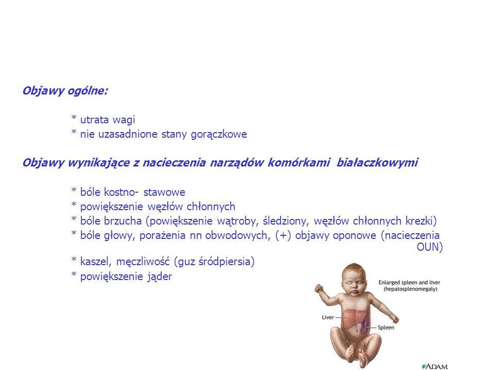 Objawy ogólne: * utrata wagi * nie uzasadnione stany gorączkowe Objawy wynikające z nacieczenia narządów komórkami białaczkowymi * bóle kostno- stawowe * powiększenie węzłów chłonnych * bóle brzucha (powiększenie wątroby, śledziony, węzłów chłonnych krezki) * bóle głowy, porażenia nn obwodowych, (+) objawy oponowe (nacieczenia OUN) * kaszel, męczliwość (guz śródpiersia) * powiększenie jąder