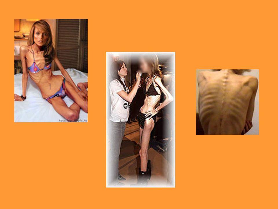 Jak wygląda i jak zachowuje się osoba chora na anoreksję.