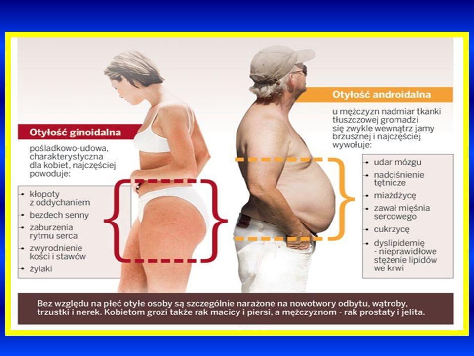 W otyłości wyróżniamy dwa typy antropometryczne : A.