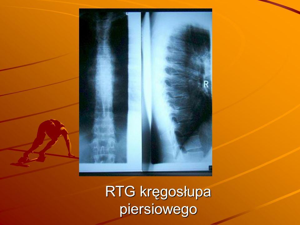 RTG kręgosłupa piersiowego