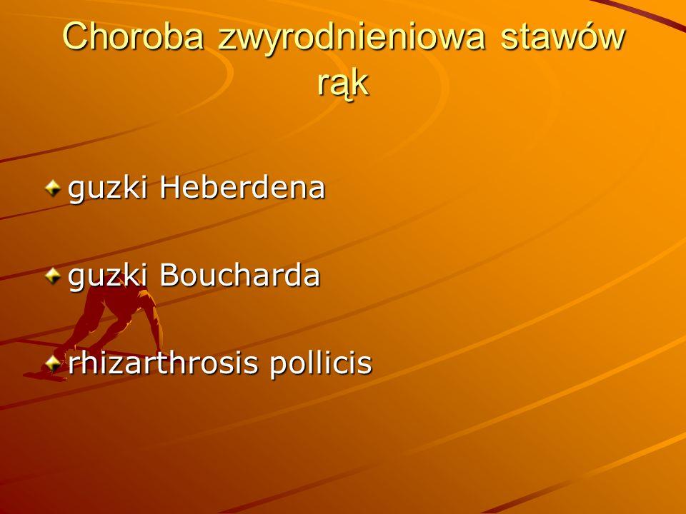 Choroba zwyrodnieniowa stawów rąk guzki Heberdena guzki Boucharda rhizarthrosis pollicis