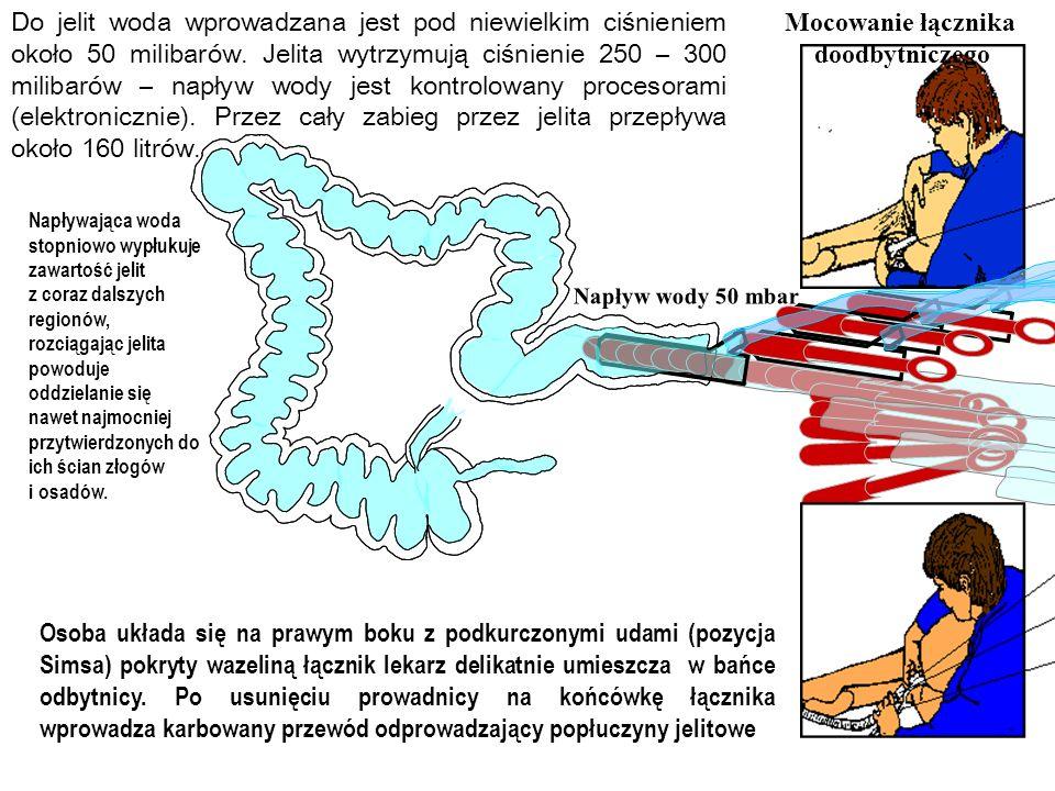 Mocowanie łącznika doodbytniczego Osoba układa się na prawym boku z podkurczonymi udami (pozycja Simsa) pokryty wazeliną łącznik lekarz delikatnie umi