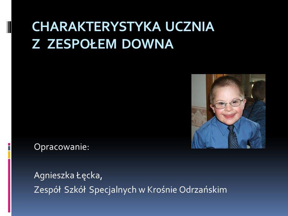 CHARAKTERYSTYKA UCZNIA Z ZESPOŁEM DOWNA Opracowanie: Agnieszka Łęcka, Zespół Szkół Specjalnych w Krośnie Odrzańskim