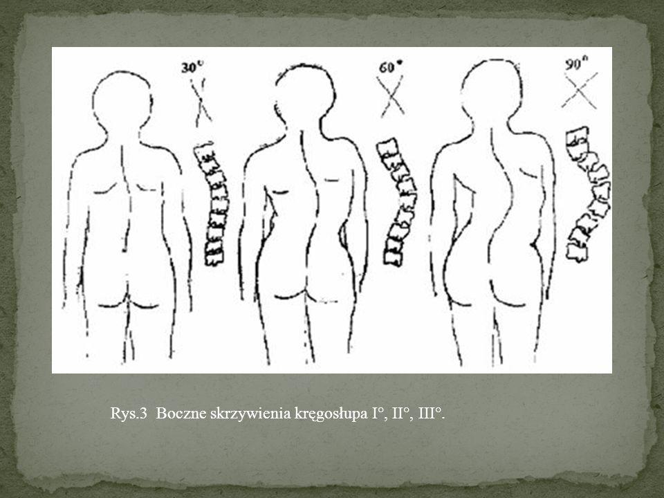 Wczesnymi objawami, łatwymi do zaobserwowania, które powinny zaniepokoić każdego rodzica są: asymetria barków, asymetria ułożenia łopatek, asymetria kątów tułowiowo – ramiennych (trójkątów talii), wystawanie biodra.