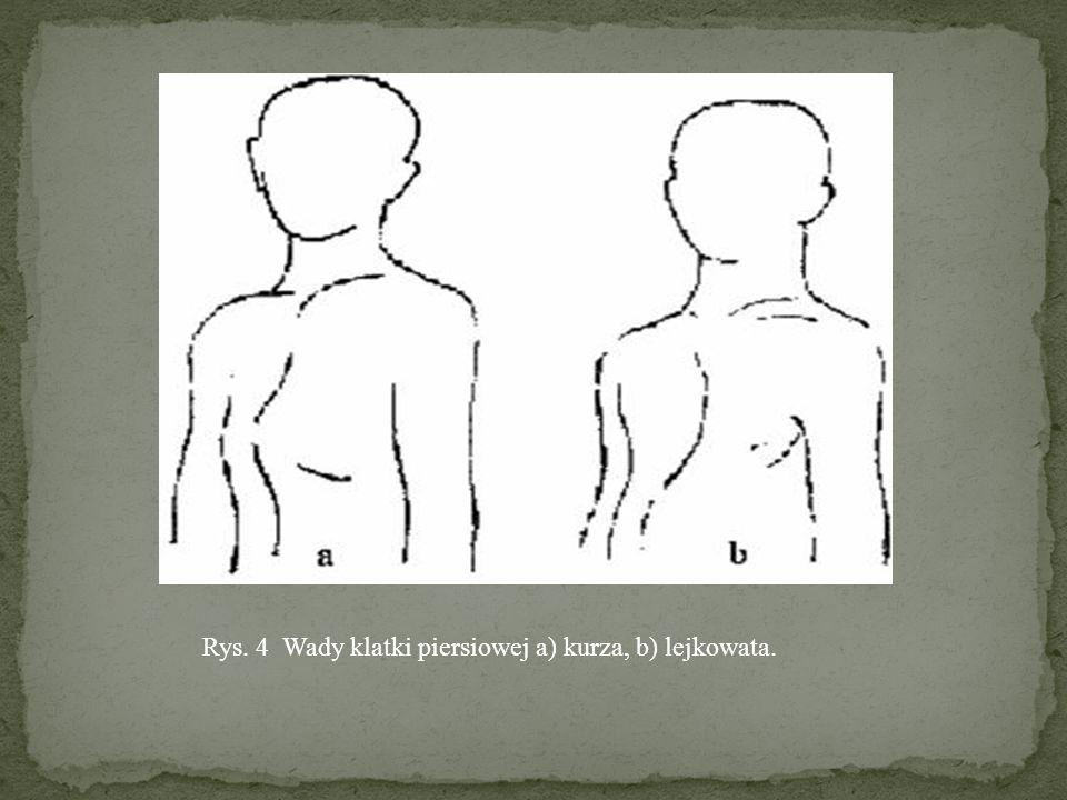 DEFORMACJE KLATKI PIERSIOWEJ: KLATKA PIERSIOWA KURZA – mostek nadmiernie wysunięty do przodu, od 4 do 8 żebra zaznacza się wyraźna wkłęsłości klatka piersiowa lejkowata, szewska – deformacja, przemieszczenie się ku dołowi dolnej części mostka i przylegających odcinków żeber, na skutek osłabienia mięśni grzbietu, wysunięcia barków do przodu, spłaszczenia klatki piersiowej i zwiotczenia mięśni brzucha występują przy oddychaniu paradoksalne ruchy klatki piersiowej.