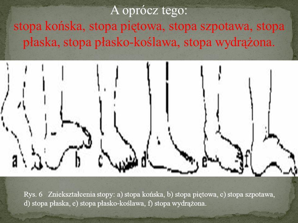 WADY KOŃCZYN DOLNYCH: kolana koślawe – wyraźne jest wygięcie kończyn w stawie kolanowym do wewnątrz,kolana szpotawe – wygięcie w stawie kolanowym na zewnątrz.