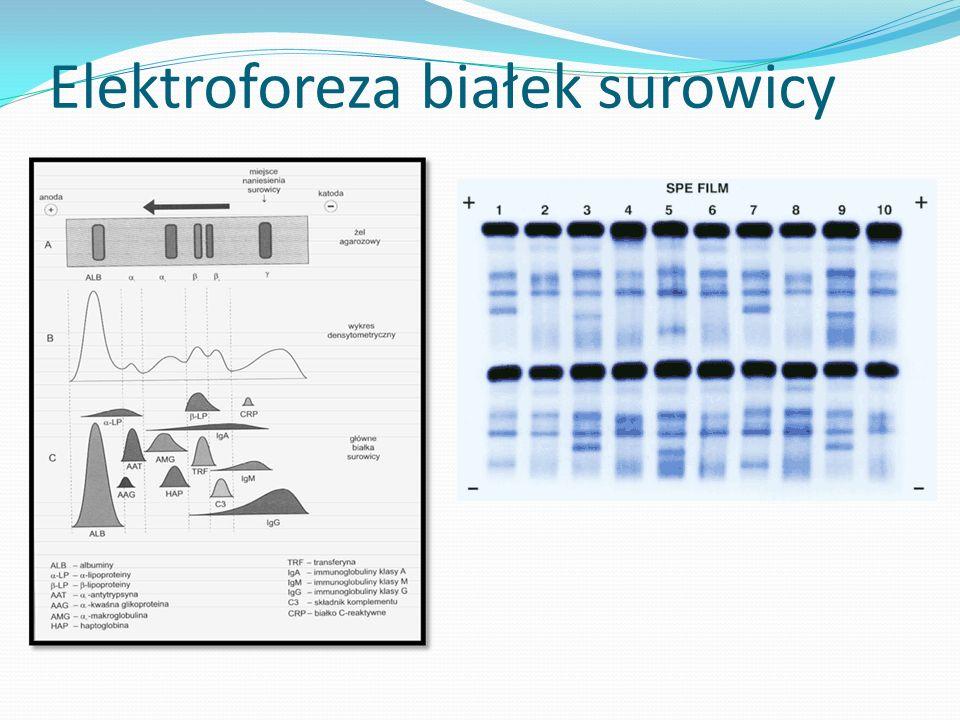 Elektroforeza białek surowicy