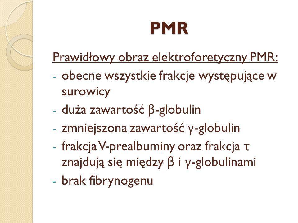 PMR Prawidłowy obraz elektroforetyczny PMR: - obecne wszystkie frakcje występujące w surowicy - duża zawartość β -globulin - zmniejszona zawartość γ -
