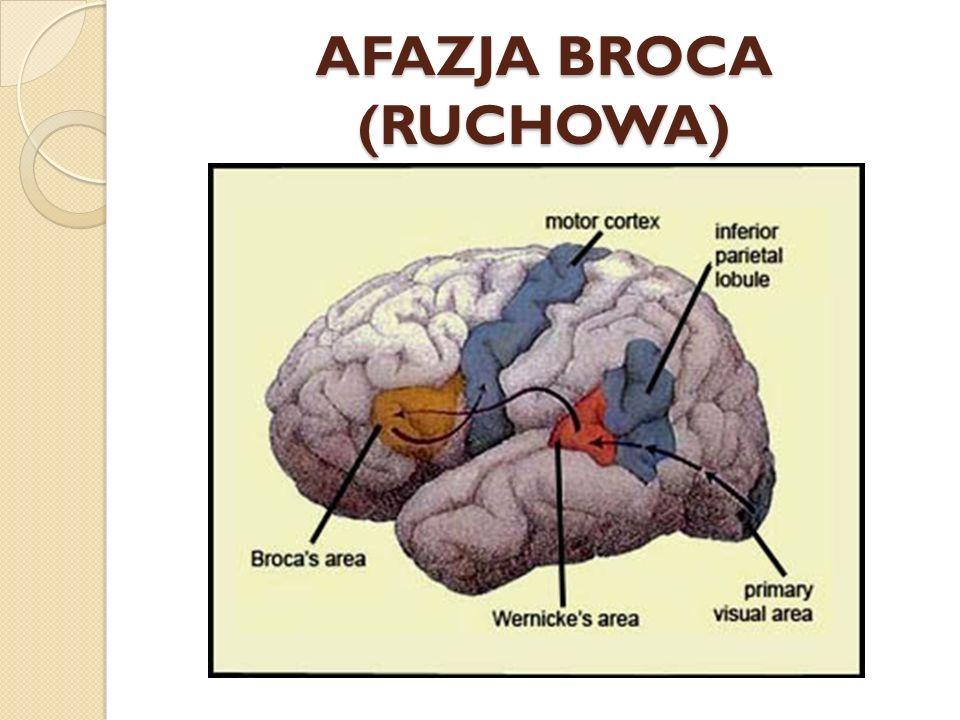 AFAZJA BROCA (RUCHOWA)