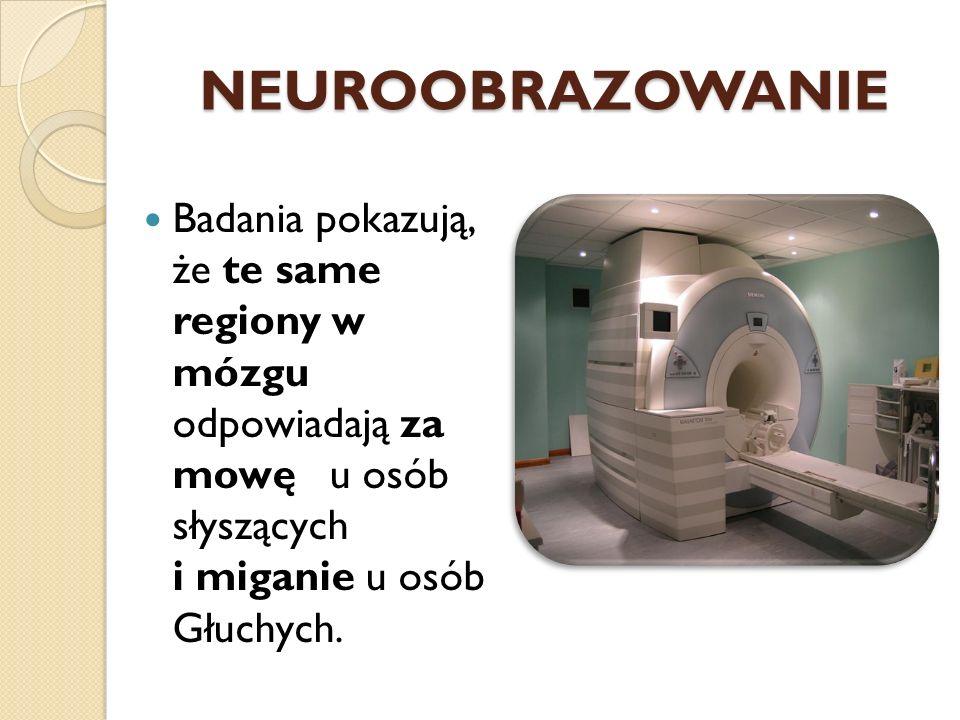 NEUROOBRAZOWANIE Badania pokazują, że te same regiony w mózgu odpowiadają za mowę u osób słyszących i miganie u osób Głuchych.