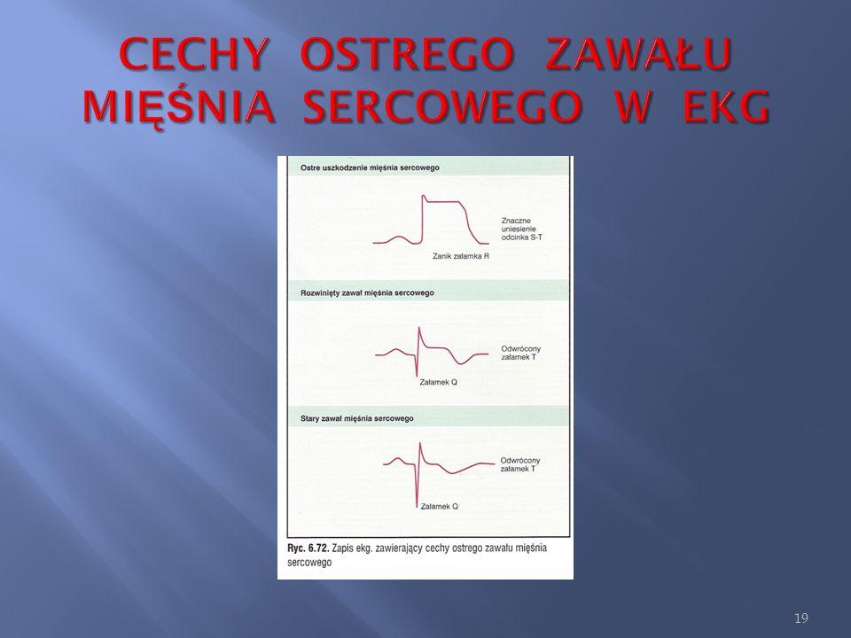 1. Uniesienie odcinka ST, zwane falą wczesnego uszkodzenia (falą Pardeego), pojawia się często już w pierwszych minutach po zawale; objaw ten szybko z