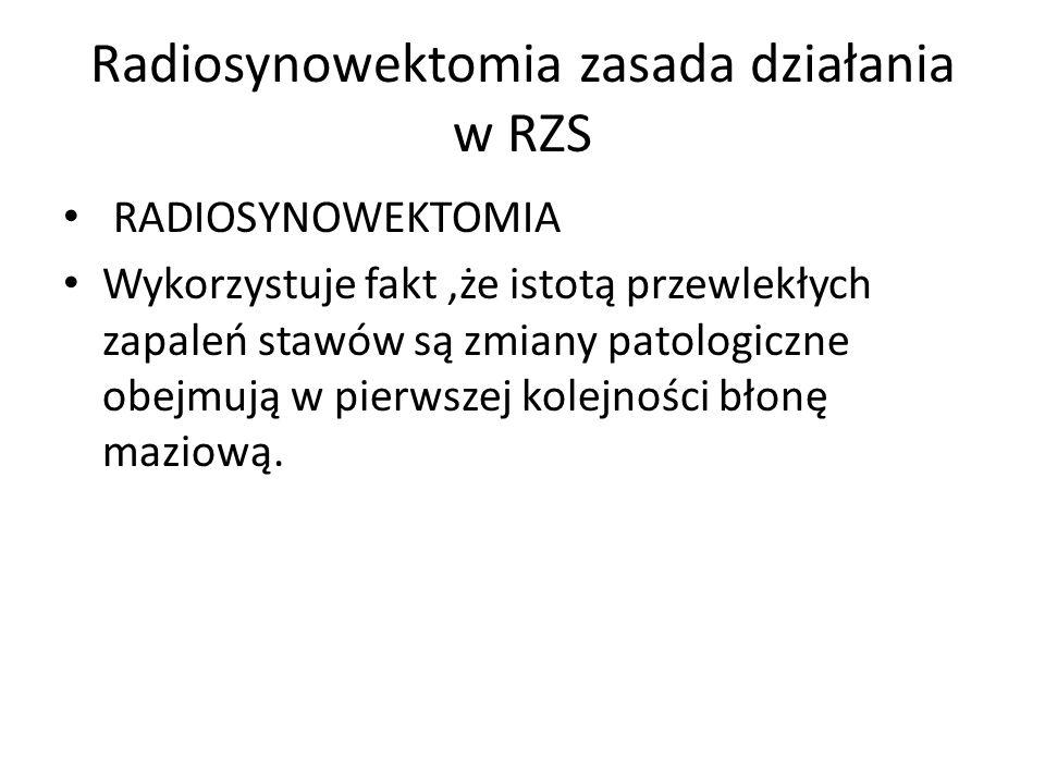 Radiosynowektomia zasada działania w RZS RADIOSYNOWEKTOMIA Wykorzystuje fakt,że istotą przewlekłych zapaleń stawów są zmiany patologiczne obejmują w p