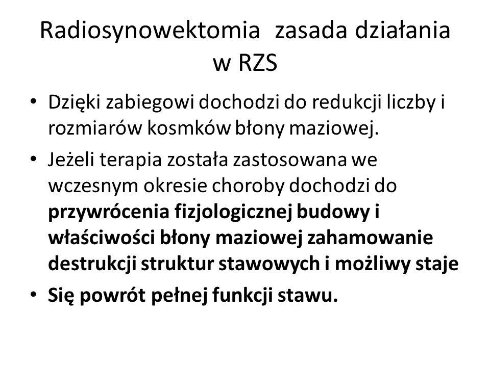 Radiosynowektomia zasada działania w RZS Dzięki zabiegowi dochodzi do redukcji liczby i rozmiarów kosmków błony maziowej. Jeżeli terapia została zasto