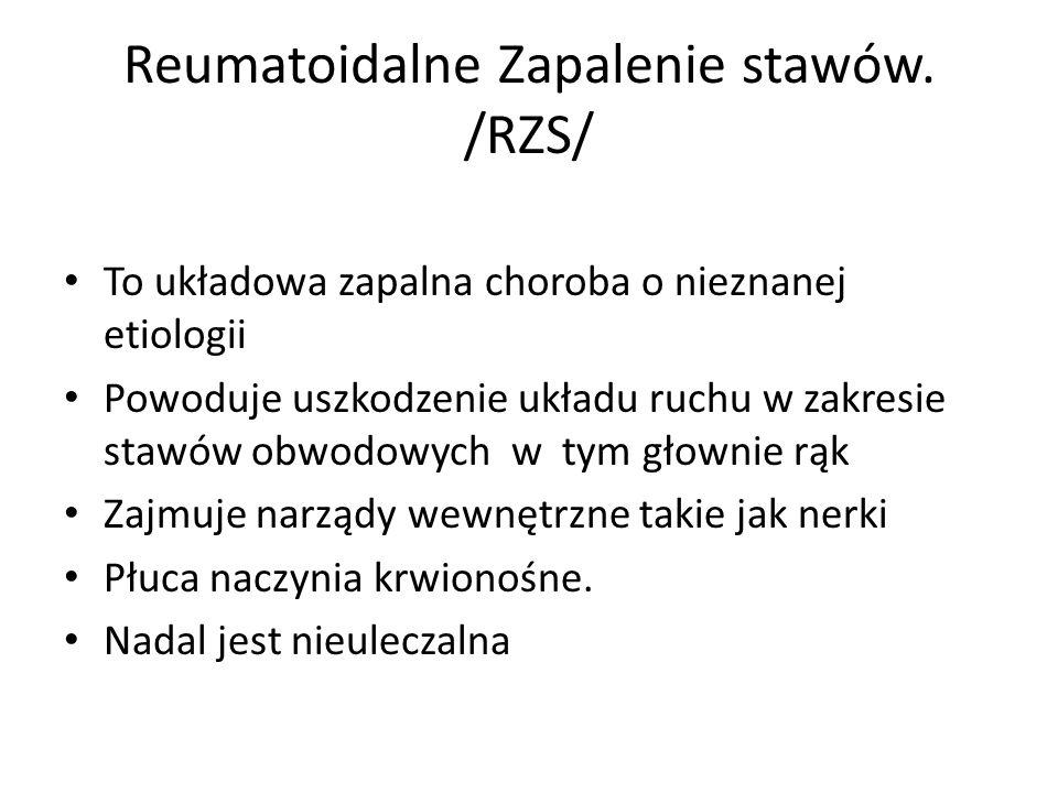 Reumatoidalne Zapalenie stawów. /RZS/ To układowa zapalna choroba o nieznanej etiologii Powoduje uszkodzenie układu ruchu w zakresie stawów obwodowych
