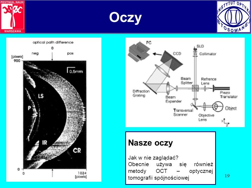 19 Oczy Nasze oczy Jak w nie zaglądać? Obecnie używa się również metody OCT – optycznej tomografii spójnościowej Oczy