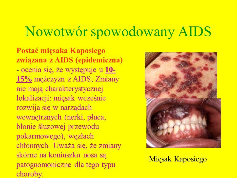 Nowotwór spowodowany AIDS Mięsak Kaposiego Postać mięsaka Kaposiego związana z AIDS (epidemiczna) - ocenia się, że występuje u 10- 15% mężczyzn z AIDS