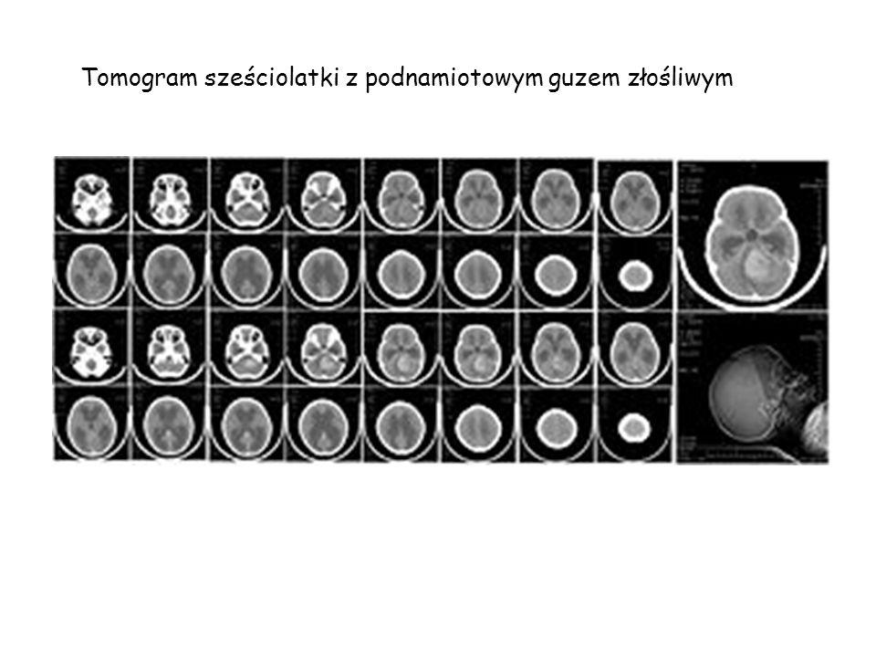 Tomograf komputerowy Tomografia komputerowa, TK, jest metodą diagnostyczną pozwalającą na uzyskanie obrazów tomograficznych (przekrojów) badanego obie