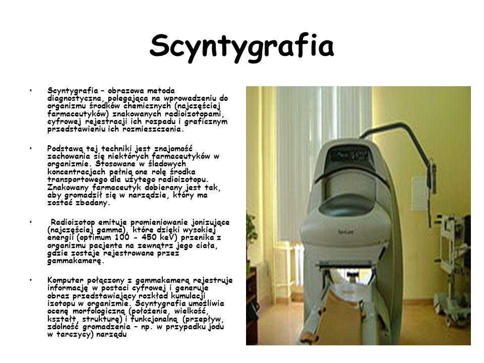 Gamma kamera do diagnozowania nowotworów u dzieci Badanie nie jest bolesne. Mały pacjent leży na łóżku z dwiema głowicami przypominającymi talerzyki.