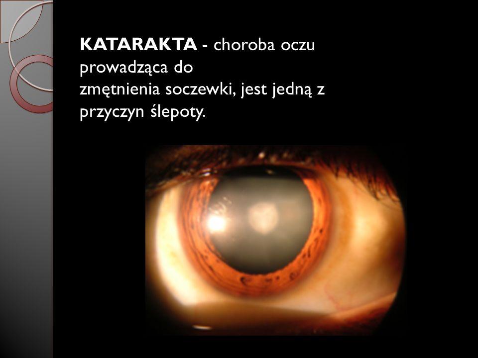 KATARAKTA - choroba oczu prowadząca do zmętnienia soczewki, jest jedną z przyczyn ślepoty.