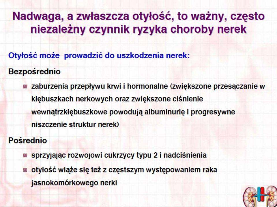 OPERACJE BARIATRYCZNE U CHORYCH DIALIZOWANYCH LISTOPAD 2011 – MAJ 2013 Klinika Chirurgii Ogólnej, Endokrynologicznej i Transplantacyjnej Gdański Uniwersytet Medyczny/ CMI