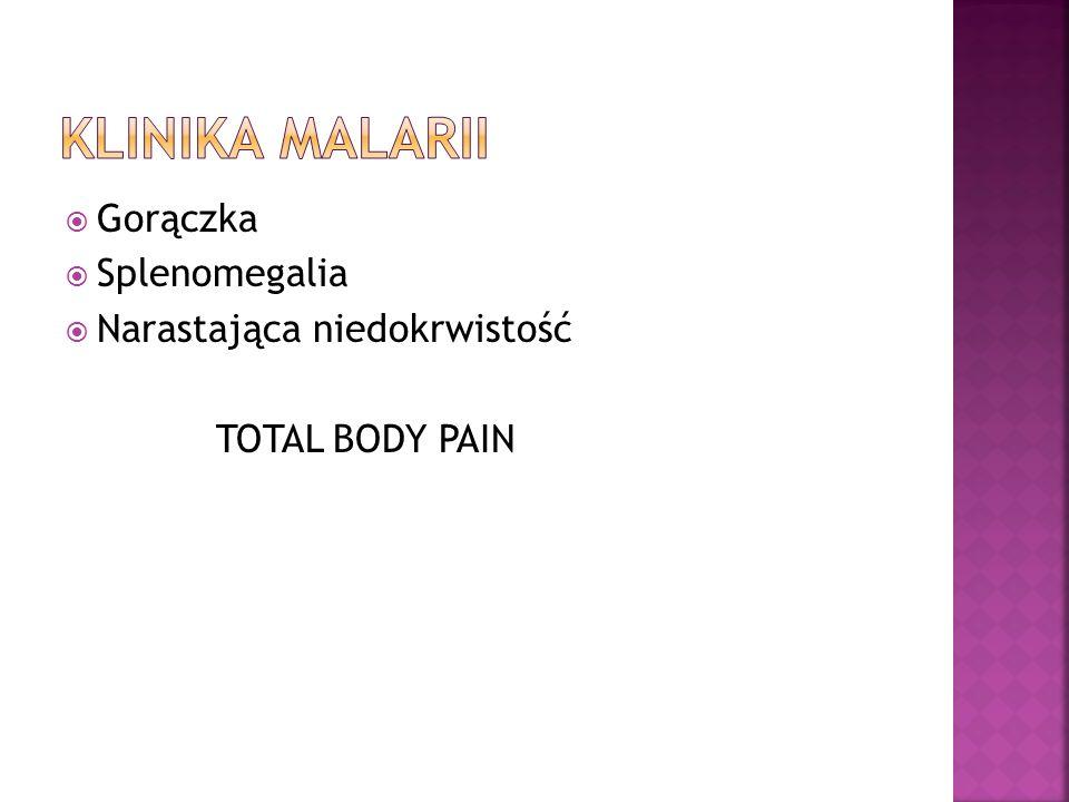 Gorączka Splenomegalia Narastająca niedokrwistość TOTAL BODY PAIN