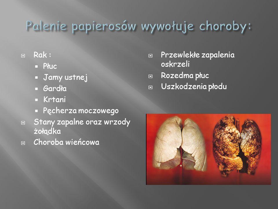 Rak : Płuc Jamy ustnej Gardła Krtani Pęcherza moczowego Stany zapalne oraz wrzody żołądka Choroba wieńcowa Przewlekłe zapalenia oskrzeli Rozedma płuc Uszkodzenia płodu