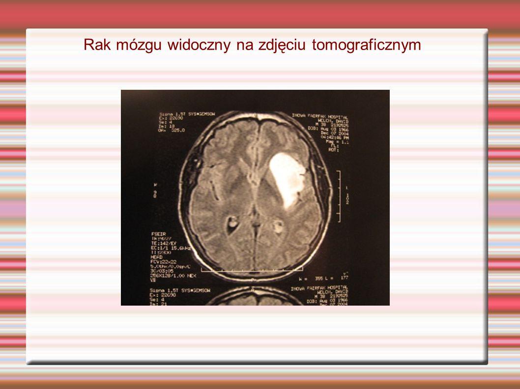 Rak mózgu widoczny na zdjęciu tomograficznym