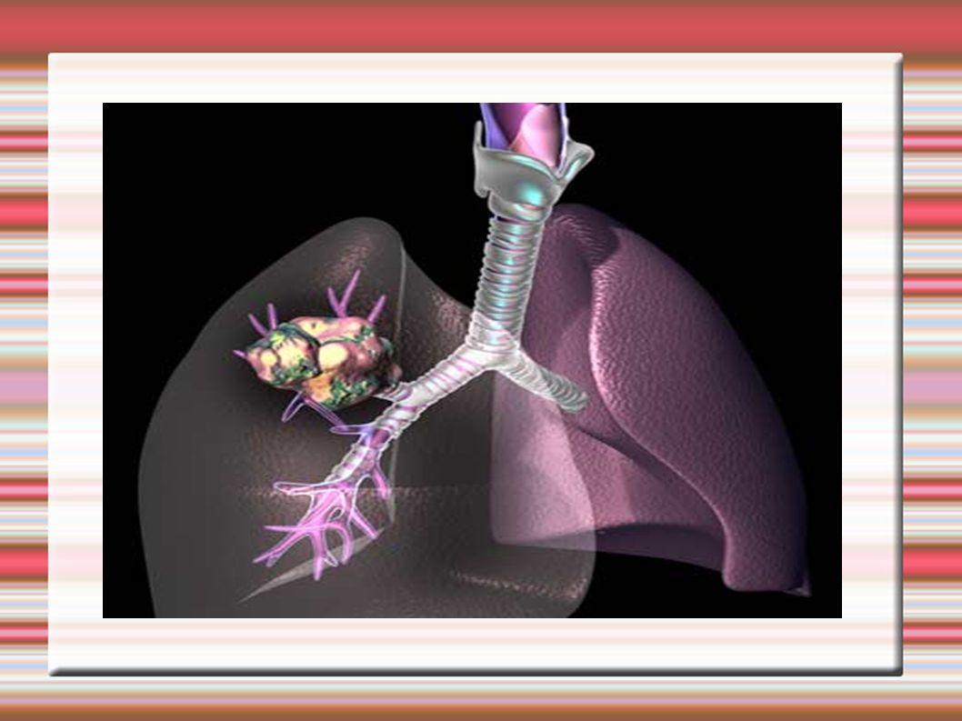 Podział nowotworów Nowotwory złośliwe dzielimy na 3 zasadnicze grupy w zależności od tkanki, z której się wywodzą.