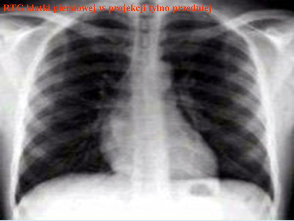 RTG klatki piersiowej w projekcji tylno przedniej