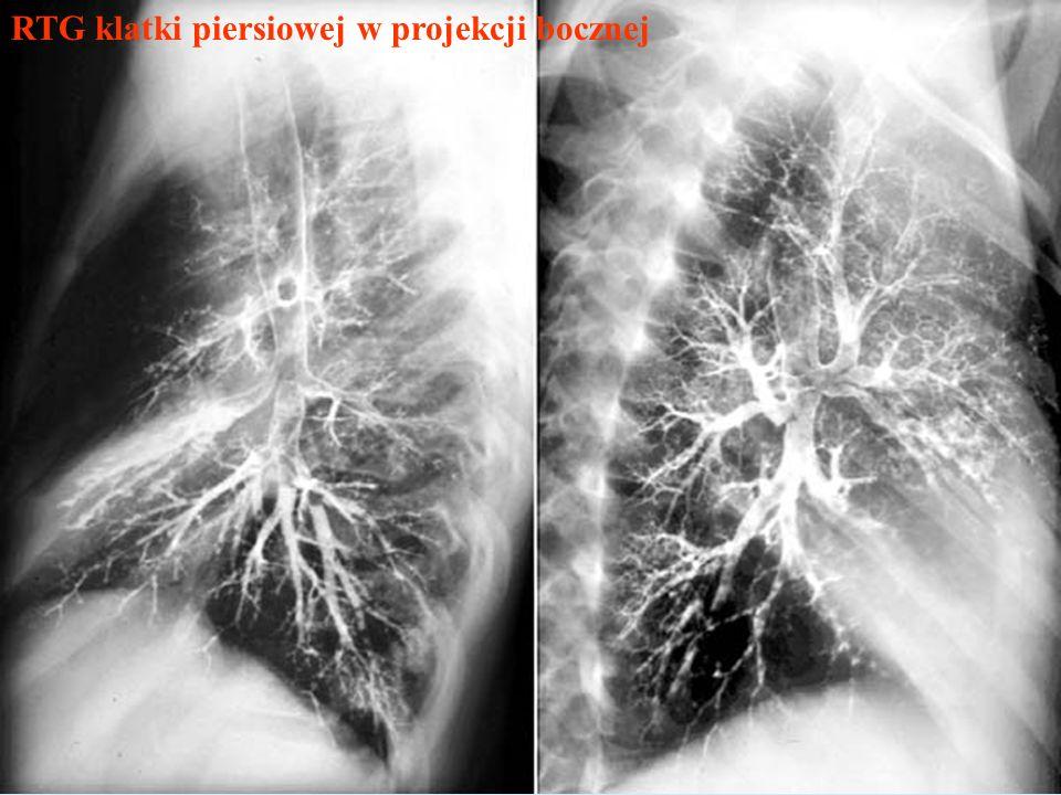RTG klatki piersiowej w projekcji bocznej