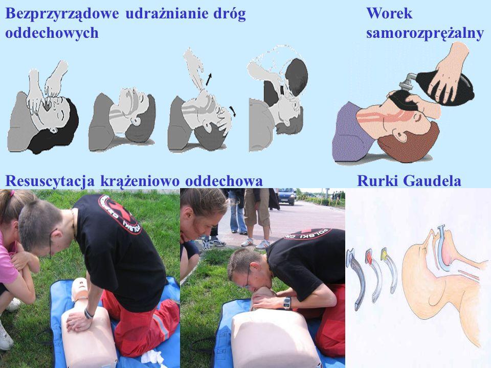 Bezprzyrządowe udrażnianie dróg oddechowych Rurki Gaudela Worek samorozprężalny Resuscytacja krążeniowo oddechowa