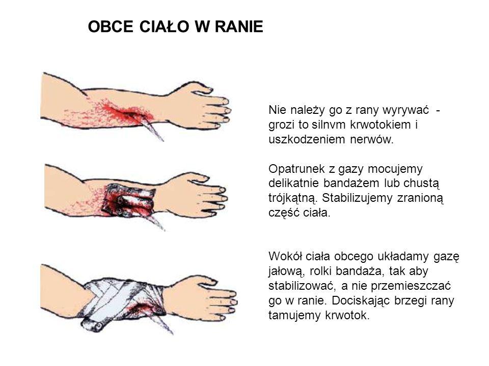 Nie należy go z rany wyrywać - grozi to silnvm krwotokiem i uszkodzeniem nerwów. Opatrunek z gazy mocujemy delikatnie bandażem lub chustą trójkątną. S