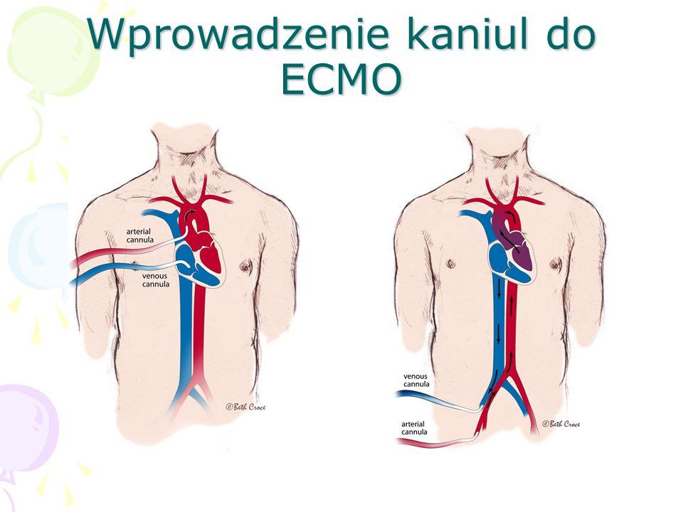Wprowadzenie kaniul do ECMO