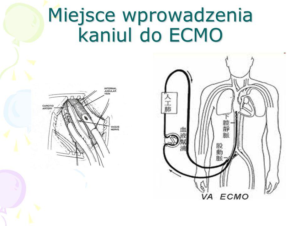 Miejsce wprowadzenia kaniul do ECMO