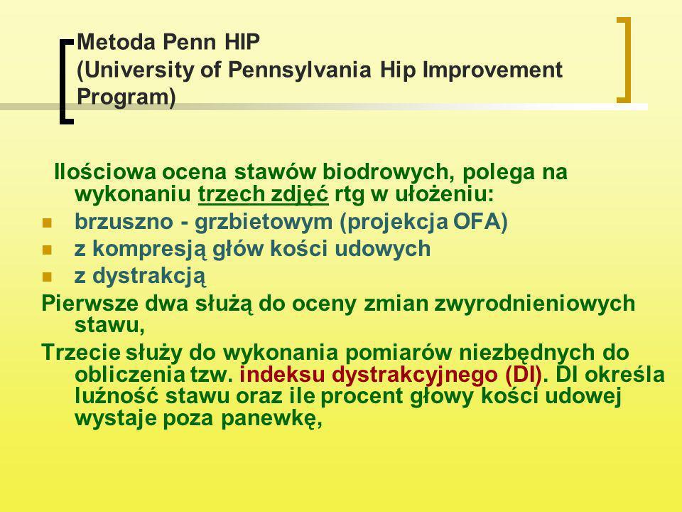 Metoda Penn HIP (University of Pennsylvania Hip Improvement Program) Ilościowa ocena stawów biodrowych, polega na wykonaniu trzech zdjęć rtg w ułożeni