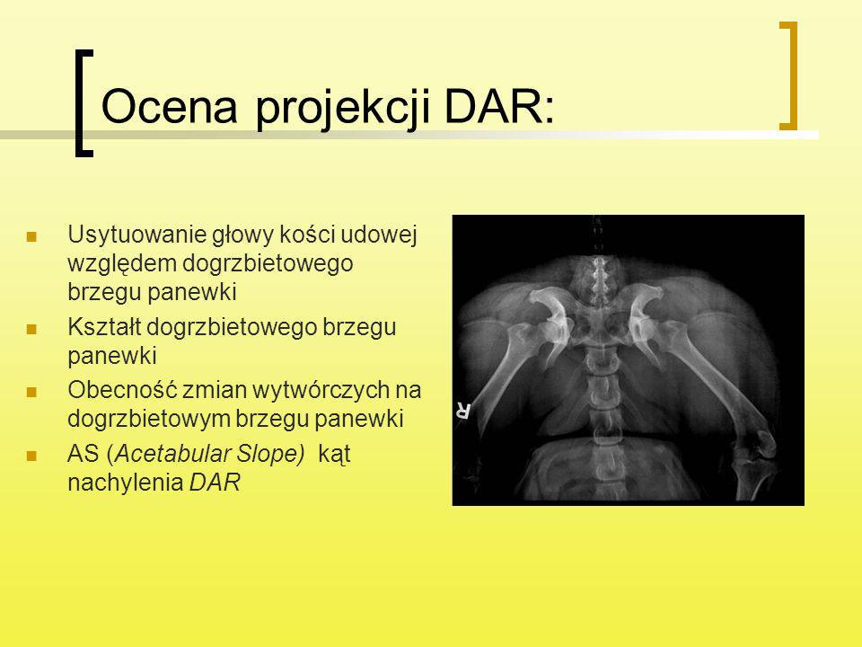 Ocena projekcji DAR: Usytuowanie głowy kości udowej względem dogrzbietowego brzegu panewki Kształt dogrzbietowego brzegu panewki Obecność zmian wytwór