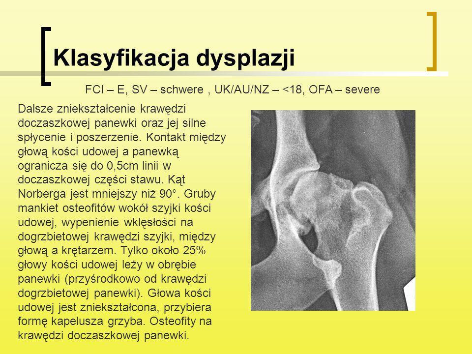 Klasyfikacja dysplazji Dalsze zniekształcenie krawędzi doczaszkowej panewki oraz jej silne spłycenie i poszerzenie. Kontakt między głową kości udowej