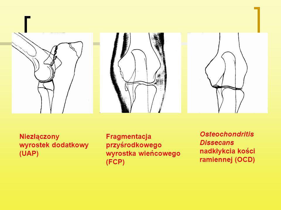 Niezłączony wyrostek dodatkowy (UAP) Fragmentacja przyśrodkowego wyrostka wieńcowego (FCP) Osteochondritis Dissecans nadkłykcia kości ramiennej (OCD)