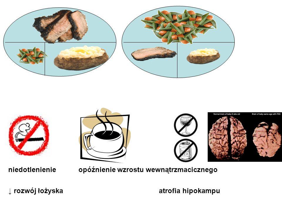 typowy posiłek prawidłowy posiłek niedotlenienie opóźnienie wzrostu wewnątrzmacicznego rozwój łożyska atrofia hipokampu