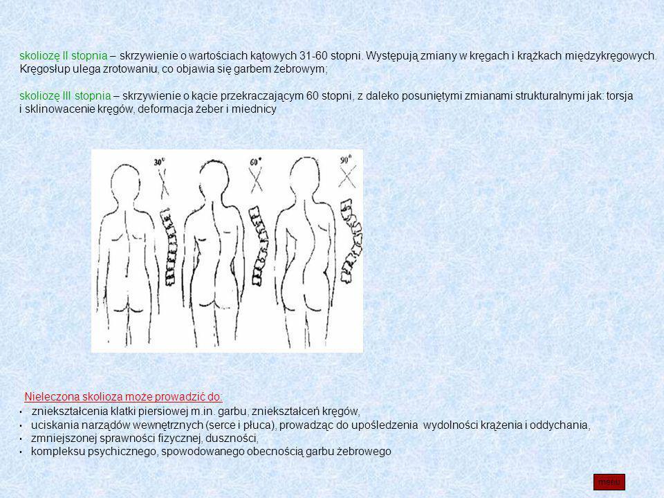 skoliozę II stopnia – skrzywienie o wartościach kątowych 31-60 stopni. Występują zmiany w kręgach i krążkach międzykręgowych. Kręgosłup ulega zrotowan